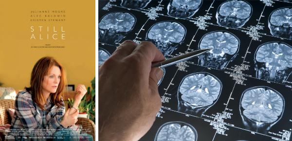 Alzheimer in beeld